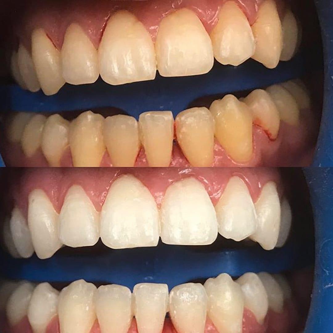 tandblekning halmstad